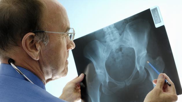¿Qué es la osteoporosis y cómo tratarla?