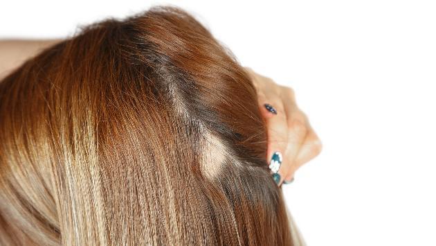 ¿Cómo detener la alopecia?