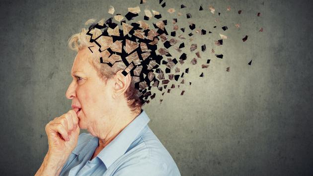 ¿Por qué nos da alzheimer? Conozca las causas de esta enfermedad