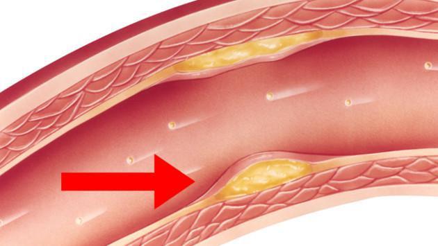 Baja el colesterol malo con esta recomendación