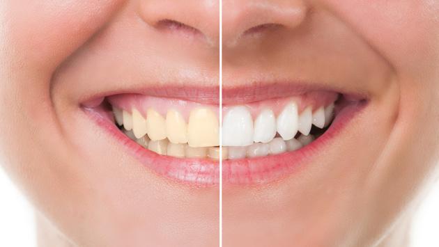 ¿Cómo puedo blanquear mis dientes?