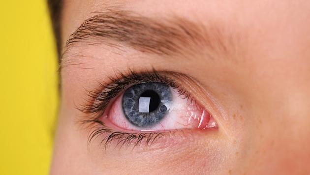 Conoce estos remedios caseros para tratar los ojos enrojecidos