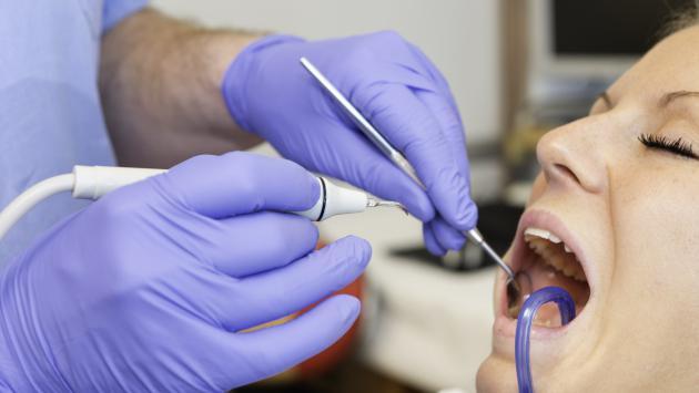 Consejos para quitar el sarro de los dientes