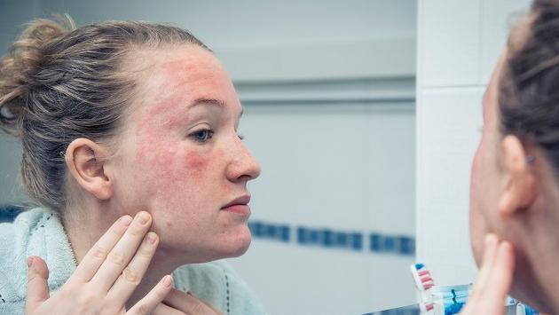 ¿Cuáles son las principales enfermedades de la piel?
