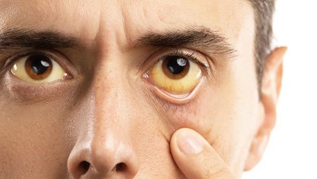 Hepatitis: conoce cuántos tipos existen