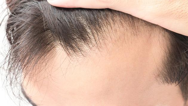 Mira estos consejos para que tu cabello crezca rápido