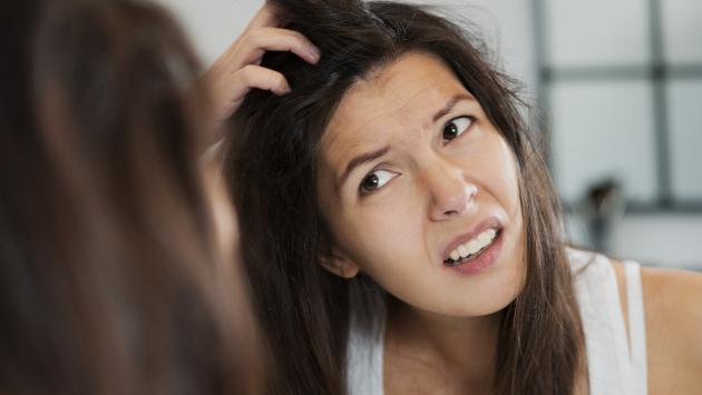 ¿Por qué sale acné en la cabeza?