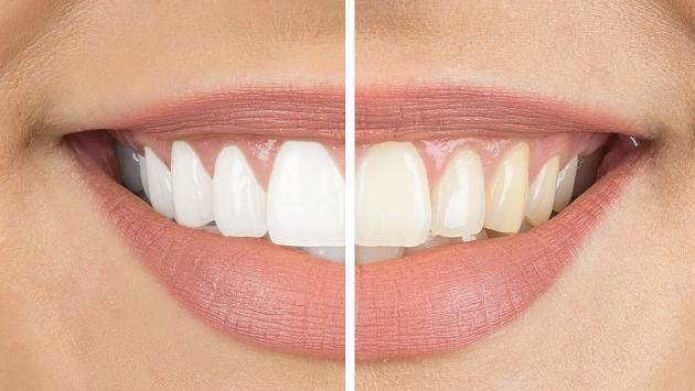 Productos naturales que ayudan a blanquear los dientes