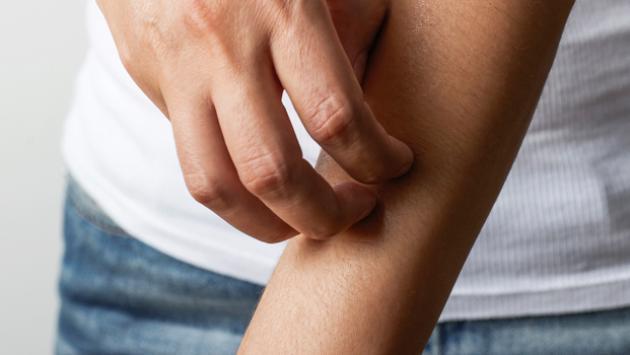 ¿Qué hacer ante una alergia en la piel? ¡El Doctor en tu casa responde!