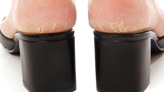 Remedios caseros para eliminar los callos de los pies