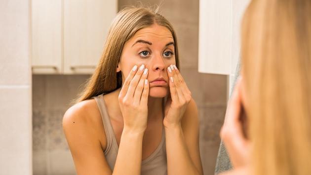 Remedios caseros para aliviar la hinchazón en los ojos