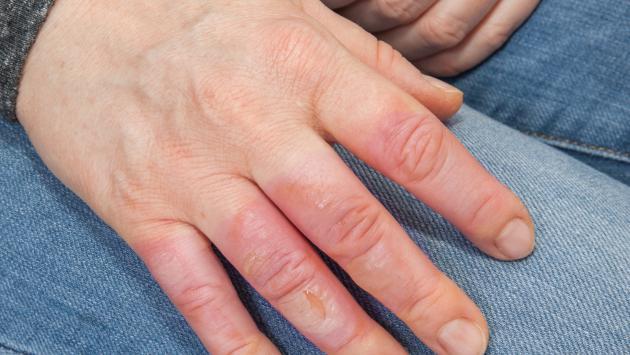 Remedios caseros para aliviar las quemaduras en los dedos | Radio ...