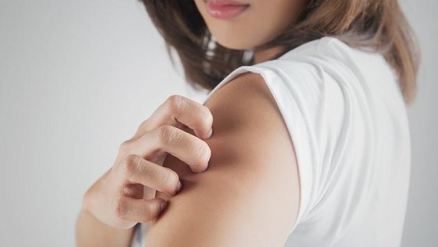 Remedios caseros para eliminar los hongos de la piel