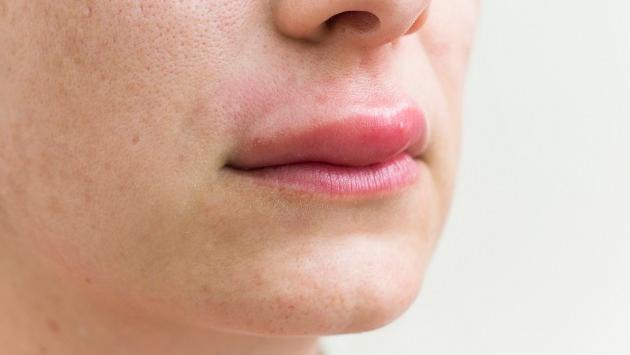 Remedios caseros para tratar los labios hinchados