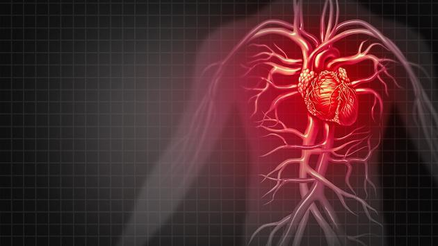 Remedios naturales para desatascar arterias