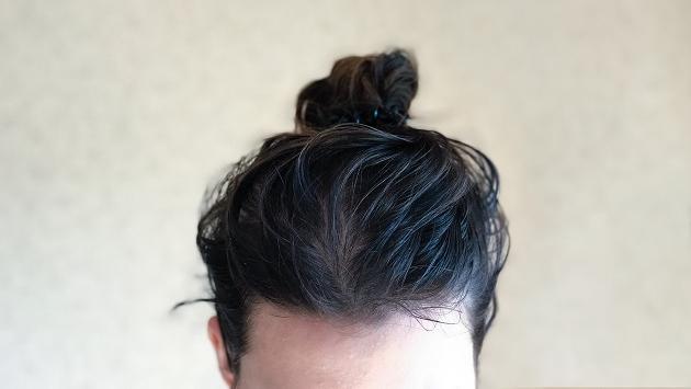 Remedios para tratar el cabello graso
