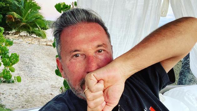 ¡Lamentable! Primo de Ricardo Montaner muere debido al coronavirus