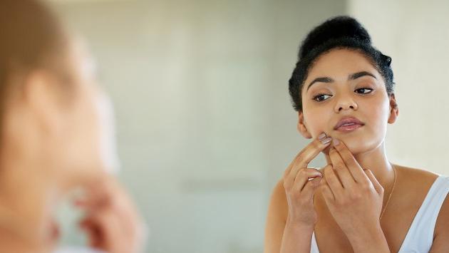 Tratamientos con sábila para tratar el acné