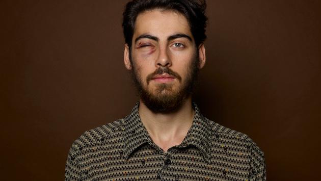 Tratamientos naturales para aliviar un ojo morado